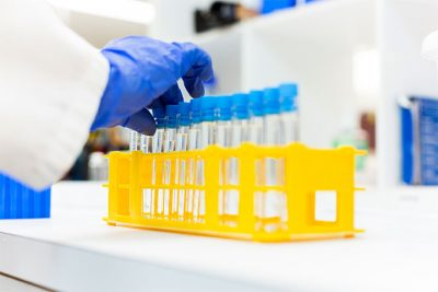 cannabis samples in test tubes to be tested for flavonoid content